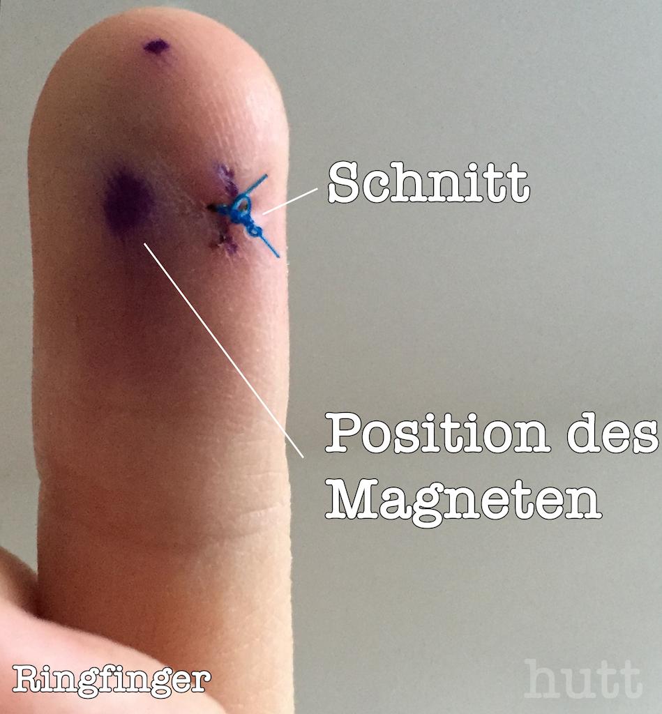 Magnetfinger einen Tag nach der Implantation