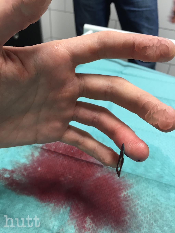 Magnetfinger unmittelbar nach der Operation
